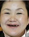 张女士:牙缺失种植牙修复案例