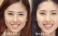 ... 兔牙矫正后图片相关图片 -> 兔牙矫正后图片相关图片
