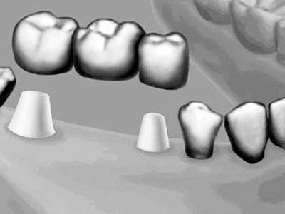 镶牙什么原理_镶牙价格表图片