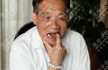 德伦口腔的多颗牙齿缺失种植牙