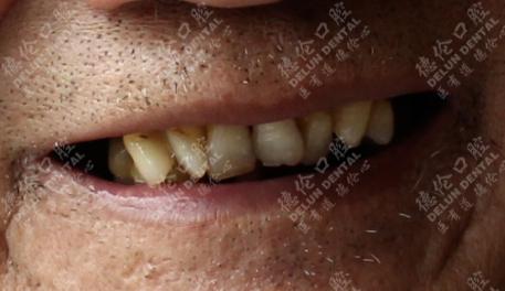 德伦口腔多颗牙齿缺失种植牙