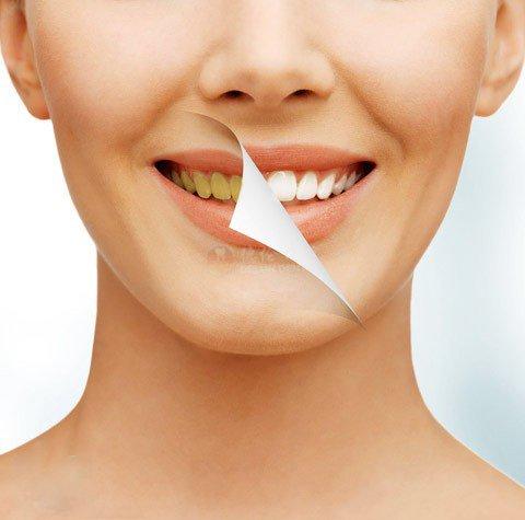 德伦口腔拯救色素牙活动
