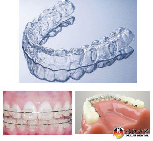 儿童牙齿矫正器有哪些