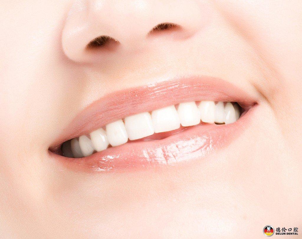 重庆牙齿整形多少钱_缺失牙 种植牙修复——广州德伦口腔