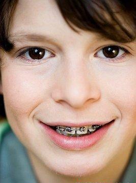 牙齿矫正会影响牙齿的寿命吗?