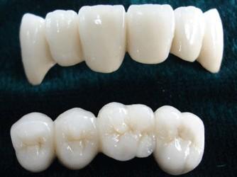 牙齿美容修复牙齿矫正技术
