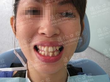 汤小姐牙齿矫正前拥挤的牙齿严重影响个人形象