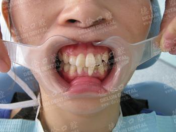 汤小姐牙齿矫正前不仅牙错位而且牙列拥挤
