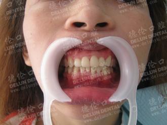 采用隐形正畸技术矫正后,汤小姐牙齿悄然立正了。
