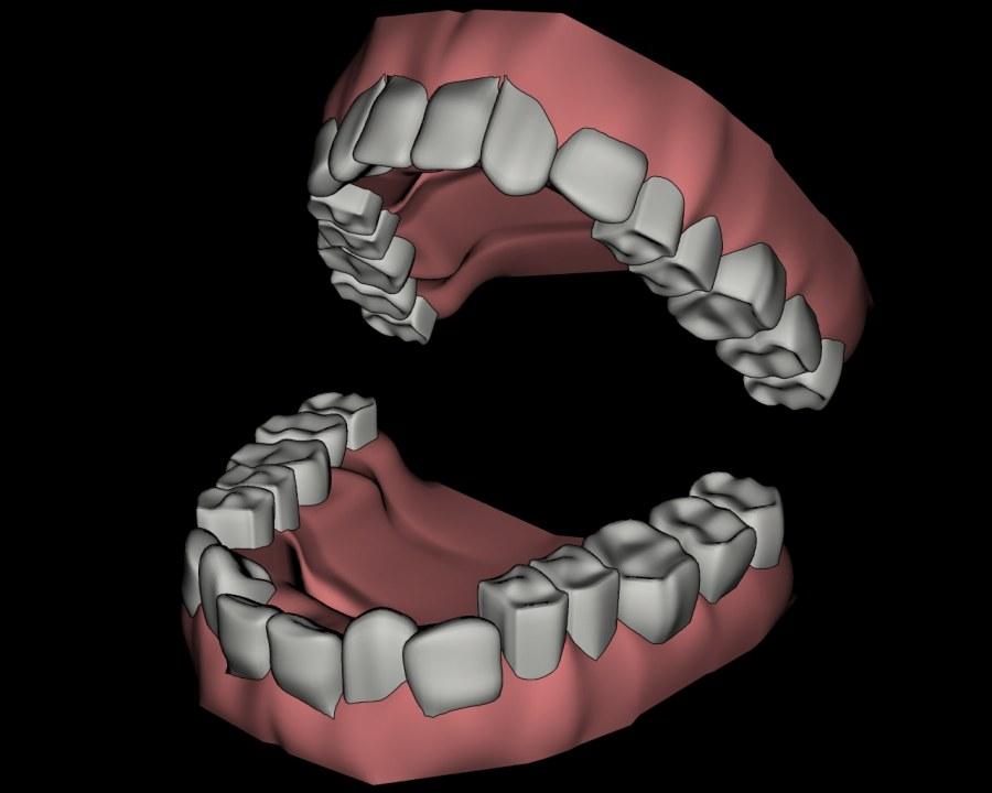 儿童牙齿矫正多少岁合适