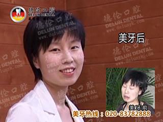 广州哪里牙齿矫正最好?