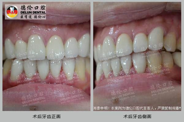 术后牙齿正面 术后牙齿侧面