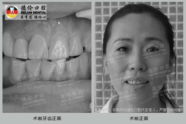术前牙齿正面 术前正面