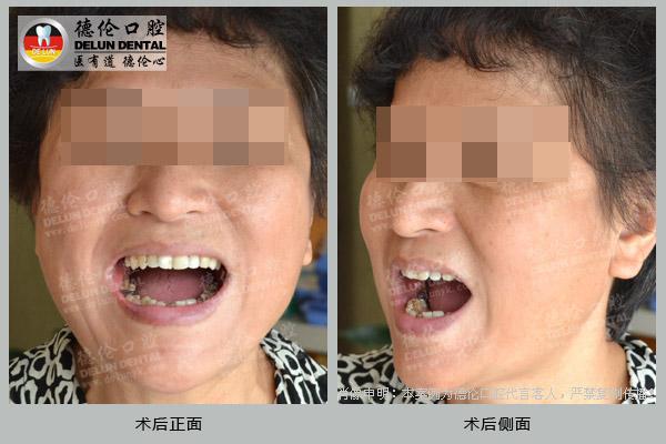 李阿姨后牙缺失种植牙修复案例——广州德伦口腔