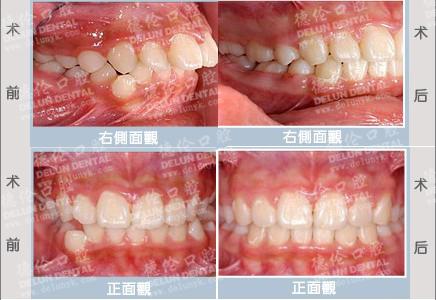 牙齿拥挤龅牙矫正案例