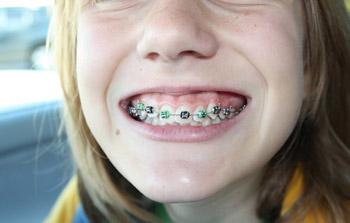 儿童龅牙矫正要不要拔牙