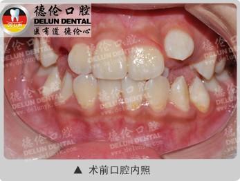 虎牙高位,错颌畸形案例1