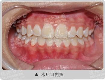 虎牙高位,错颌畸形案例3