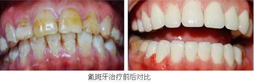 氟斑牙如何美白?3d全瓷牙贴面快速美牙 广州德伦口腔