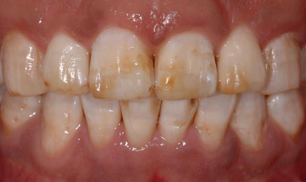 黄牙、烟渍牙