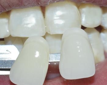 牙齿美白案例