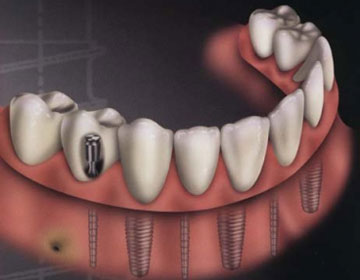 种植牙能够维持多少年