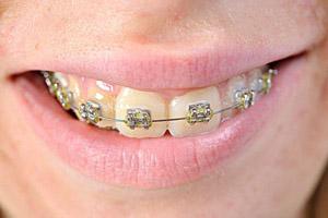 牙齿矫正时间需要多久