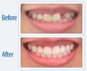 广州牙齿缺损一块如何治疗
