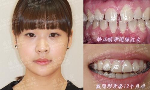 牙间隙成求职障碍 隐形矫正成就幼师梦