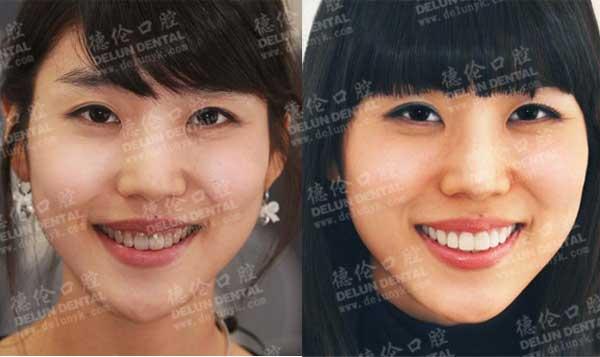 四环素牙3D全瓷牙贴面美白案例