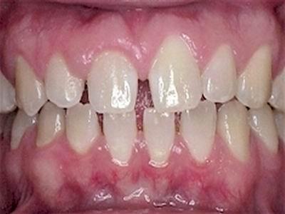 牙齿稀疏要怎么办.jpg