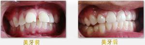 牙齿矫正需要多少钱