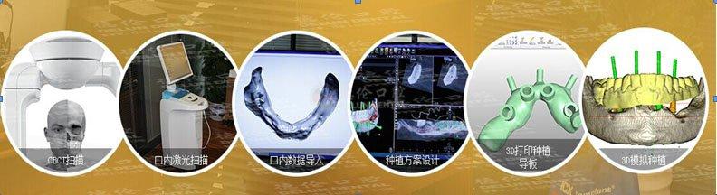 名人青睐数字化技术,亲临德伦口腔体验   牙齿缺失现象不再罕见,越来越多的人在遭受着牙齿缺失的痛苦。比如形象受损、咀嚼困难、肠胃受累、食欲减退等。不少名人也难逃此难。    德伦口腔工作医护人员对马志海进行Newtom CBCT拍摄获取口腔三维信息   广东著名主持人马志海:牙齿问题让我常常吃睡不安,吃豆腐都会牙齿酸痛。    德伦口腔医生正和欧阳丹秘书长讲解数字化种植牙方案   广州市老人体育协会秘书长欧阳丹:牙齿不好,吃饭都变成了一种受罪,美食面前也很难动容。    广东省军区原司令员张巨惠、原