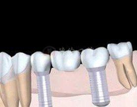 多颗牙种植