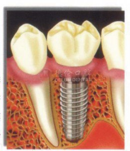多颗牙种植效果