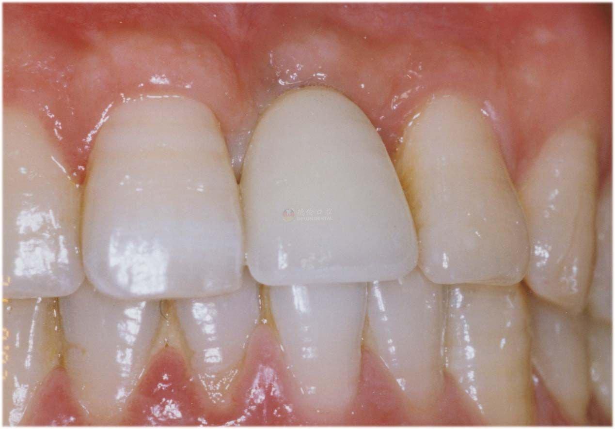 多颗牙种植如何选材料?