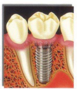 半口牙种植寿命