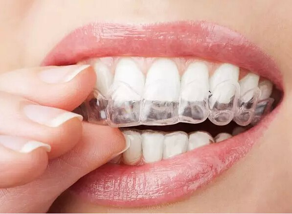食物预防蛀牙
