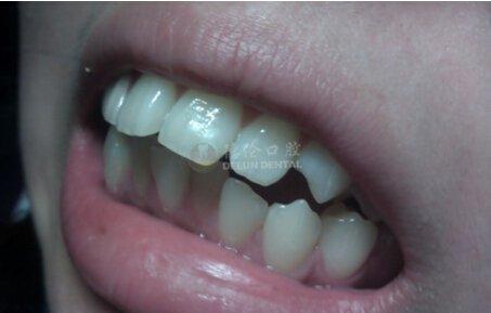 成人牙齿矫正