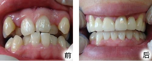 虎牙矫正是怎样的?