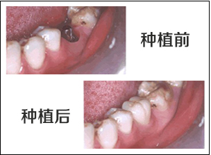 北京微创种植牙多少钱