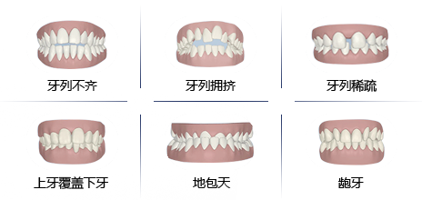 儿童牙齿畸形的危害
