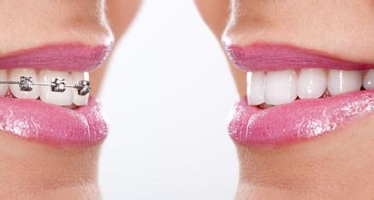 牙齿矫治费用