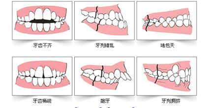 常见的牙齿不齐情况