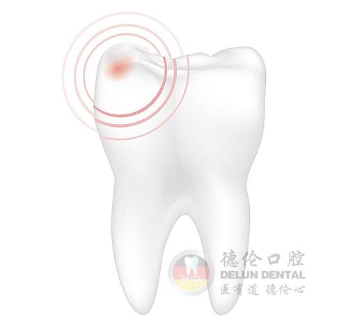 广州牙痛治疗多少钱