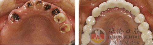广州蛀牙了需要镶牙吗