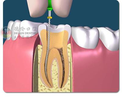 牙齿根管治疗副作用大不大