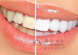 洗牙真的能让牙齿变白吗