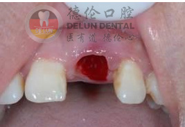 广州镶牙的危害有哪些