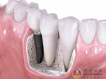 广州牙龈萎缩做种植牙好不好